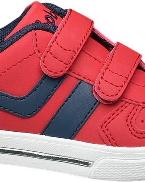 Červené topánky Bobbi-Shoes